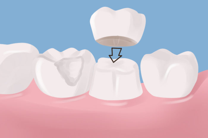 Dental crowns in livonia