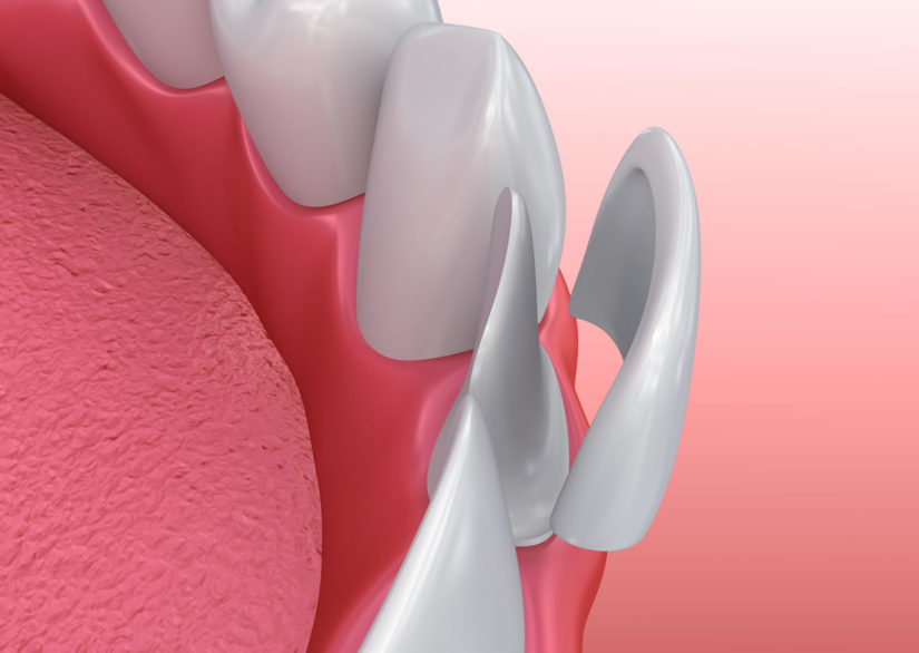 Dental Veneers Vs Crowns Which Option Is Best For You