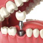 Bone Grafting for Dental Implant by Livonia Dentist