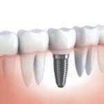 Dental implants in Livonia Michigan