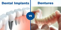 Dental Bridges vs Dental Implants