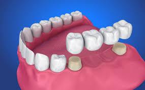 How Much Do Dental Bridges Cost