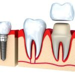 Dental Crown Cost By Livonia MI