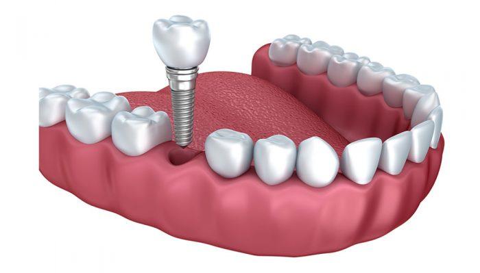 Dental Implant by Platinum Dental Care Livonia
