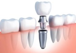 How Long Do Dental Implants Last